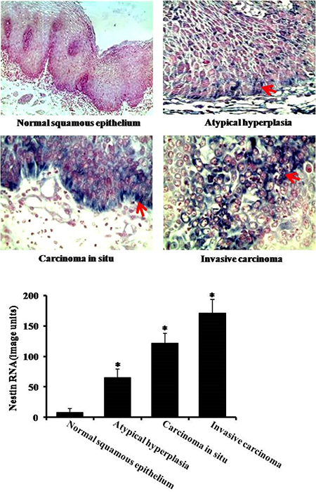 Expression of nestin in esophageal carcinoma by in situ hybridization.