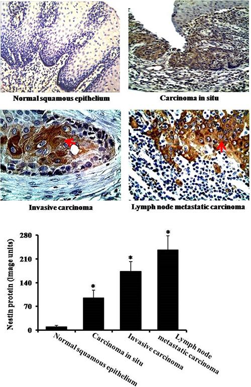 Immunohistochemical analysis of nestin.