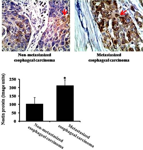 The expression of nestin in non-metastasized (without lymph node metastasis) and metastasized (with lymph node metastasis) esophageal carcinoma by immunohistochemistry.
