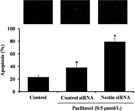 Detection of apoptosis in paclitaxel treated Eca-109 cells by TUNEL assay.