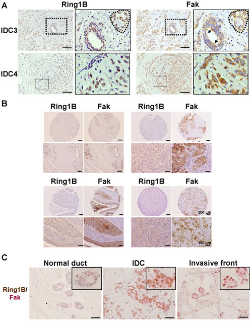 Ring1B expression is directly associated with Fak expression in invasive ductal carcinoma.