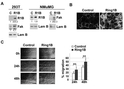 Ectopic Ring1B is able to induce Fak expression and cell migration.