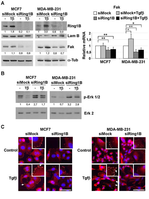 Endogenous Ring1B is required to sustain steady state levels of Fak, modulate Erk phosphorylation and to allow Fak recruitment to focal adhesions upon Tgfβ treatment in mammary cancer cell lines.