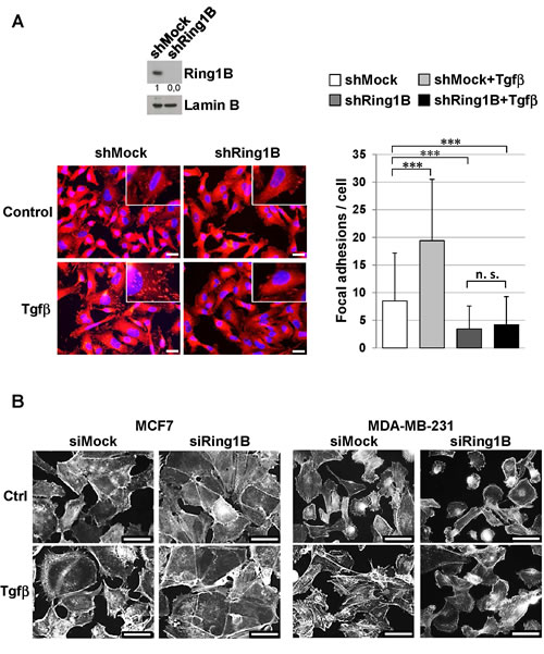 Endogenous Ring1B is required to allow Tgfβ-induced focal adhesion formation and phenotypic changes in mammary cancer cell lines.