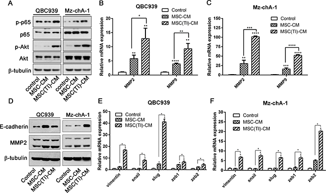 MSC(TI)-CM increased the expression of metastatic markers in CCA cell lines.
