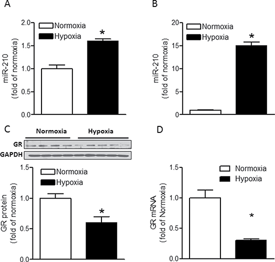 Hypoxia induces miR-210 expression and suppresses GR expression in fetal rat hearts.