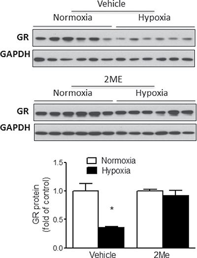HIF-1α regulates hypoxia-mediated suppression of GR in fetal rat cardiomyocytes.