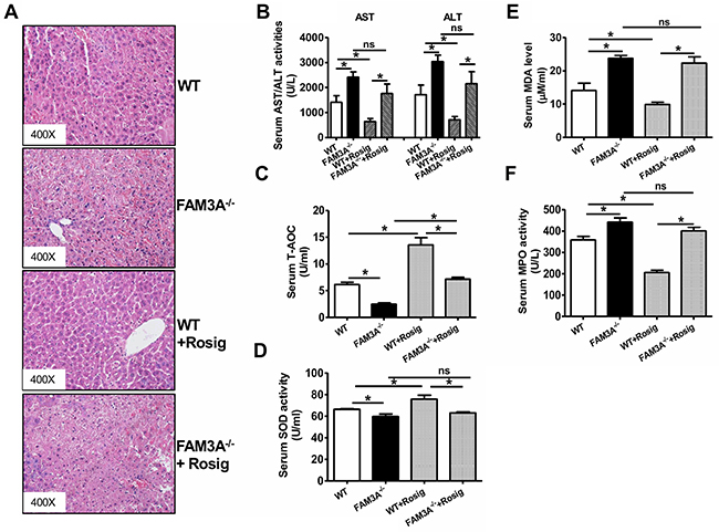 Deficiency of FAM3A abolished PPARγ's protective effects in liver IRI.