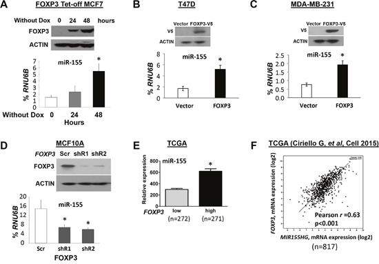 FOXP3 induces miR-155 expression in human breast cancer cells.