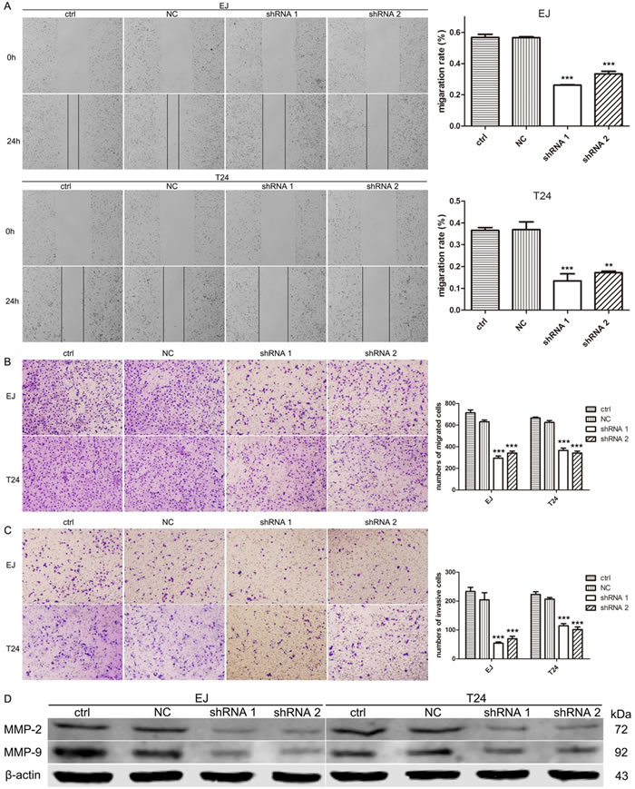 Downregulation of A2bR inhibits cell migration and invasion of BUC cells in vitro and reduces the level of MMP-2 and MMP-9.
