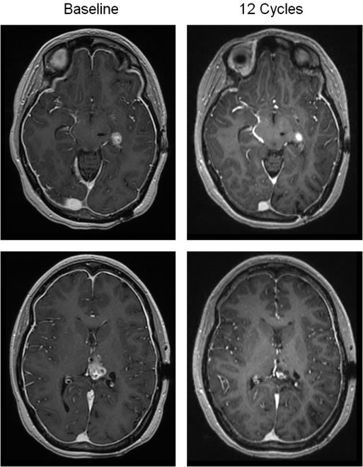 Objective response in a patient with recurrent glioblastoma.