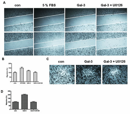 FIGURE 5: ERK1/2 inhibition decreased Gal-3-induced cell migration.
