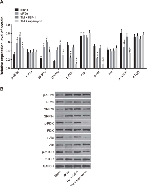 Expression of ERS-related proteins and PI3K/Akt/mTOR signaling pathway-related proteins in U266 cells in the blank, TM, TM + rapamycin and TM + IGF-1 groups measured by Western blotting.