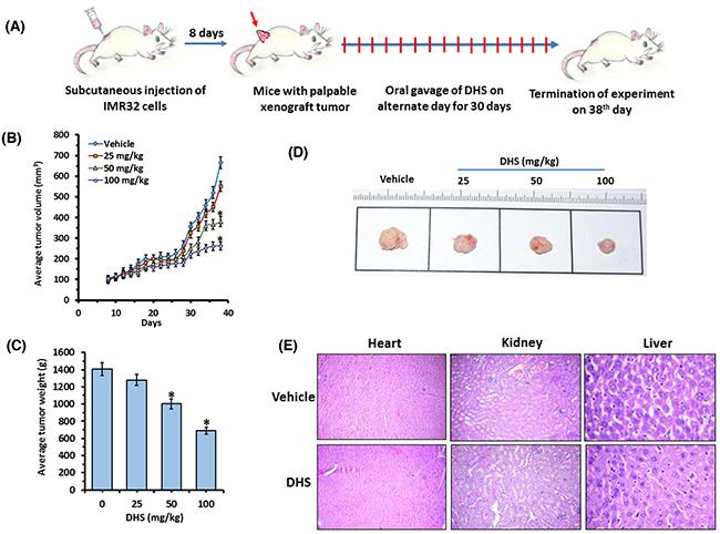 DHS inhibits neuroblastoma tumor xenograft growth in mice.