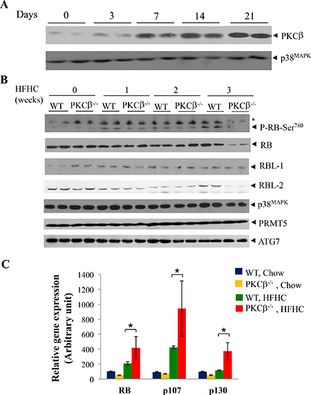 HFHC diet intake reduces RB protein content post-transcriptionally in PKCβ-/- liver compared to normal WT liver.