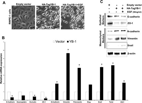 YB-1 induces EMT in non-tumorigenic prostate epithelial cells.