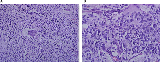 H&E staining of the patient with TIAM1 deletion.