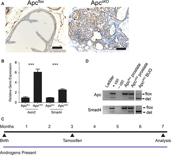 Rationale behind the Apc-Smad4 double knockout (ApccKOSmad4cKO) mouse model.