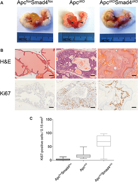 Proliferative increases in ApccKOSmad4cKO mice compared to ApccKO mice.