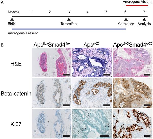 Tumors in ApccKOSmad4cKO mice are castration resistant.