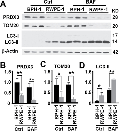 PRDX3 expression and its association with autophagy flux in cultured prostate cells.