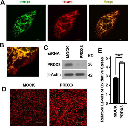 Mitochondrial association and impacts on oxidative stress of PRDX3.