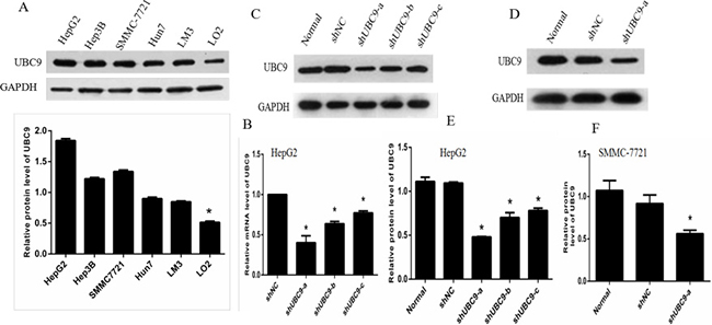 UBC9 expression in untreated and treated groups of HCC cells.