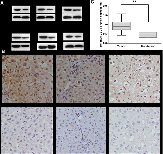 The expression of UBC9 in human HCC tumors and adjacent non-tumor liver tissues.