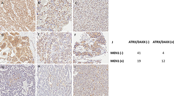 Immunohistochemical staining of MEN1 (A)(D)(G), ATRX (B)(E)(H), and DAXX (C)(F)(I).
