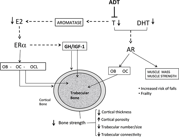 Mechanisms of bone loss in men with prostate cancer receiving androgen deprivation therapy.