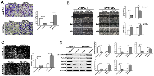 HIF-2α promotes cell migration, invasion, and VM formation in vitro.