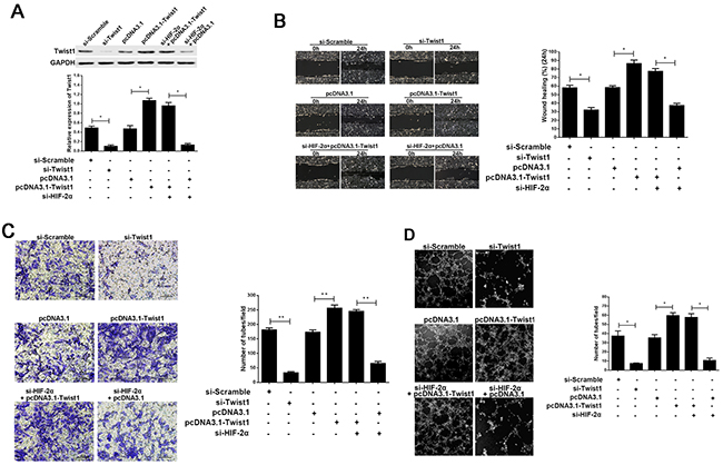The effect of Twist1 in the progress of HIF-2α promoting cell migration, invasion, and VM formation in vitro.