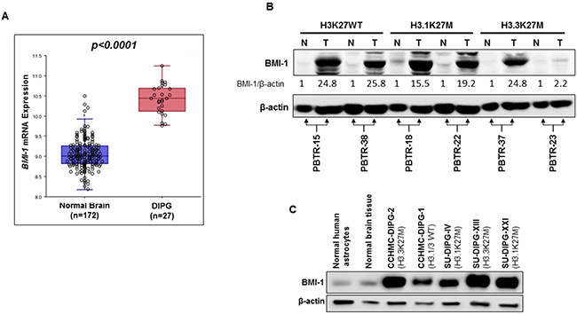 BMI-1 is highly expressed in DIPG tumors and patient-derived primary cell lines regardless of their H3K27M mutation status.