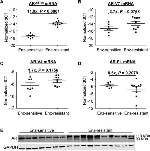 Increased AR-V expression in LNCaP tumors that have developed acquired resistance to enzalutamide.