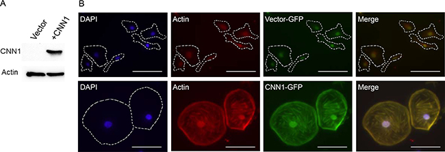 Overexpression of CNN1 in FE-RAS cells confers changes in cell morphology and cytoskeleton distribution.