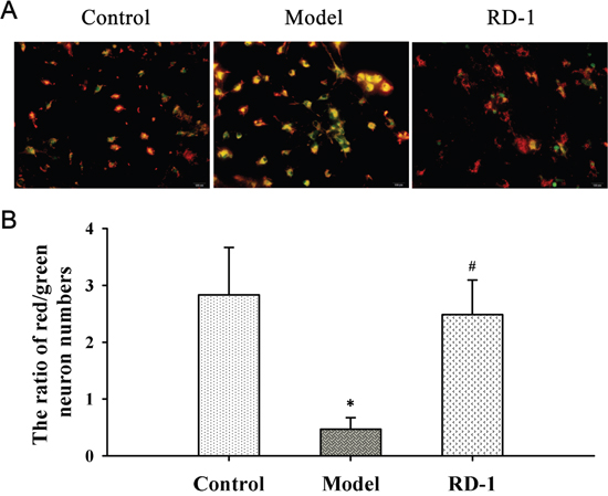 RD-1 stabilized MMP in PCNs subjected to OGD/R injury.