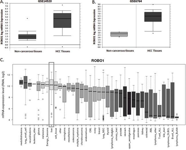 ROBO1 expression profile in NCBI GEO datasets and differential human malignancies.