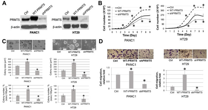PRMT5 is important for cell proliferation, anchorage-independent growth and migration of PDAC and CRC.