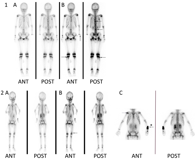 Skeletal abnormalities detected by whole-body bone SPECT scan.