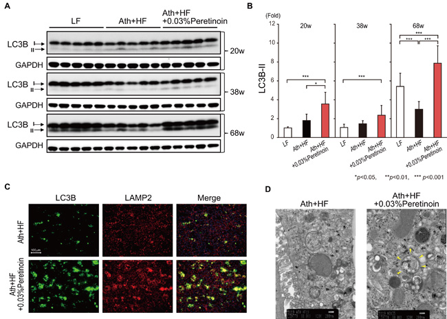 Peretinoin activates autophagy in the liver of mice fed the Ath+HF diet supplemented with 0.03% peretinoin.