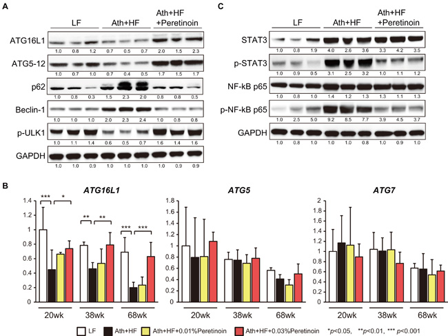 Atg16L1 expression is regulated by peretinoin at both the mRNA and protein level.