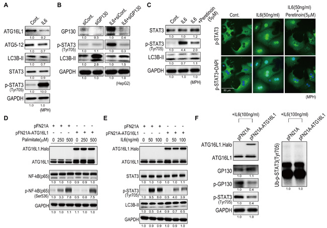 Peretinoin inhibits IL6 signaling by up-regulating Atg16L1.