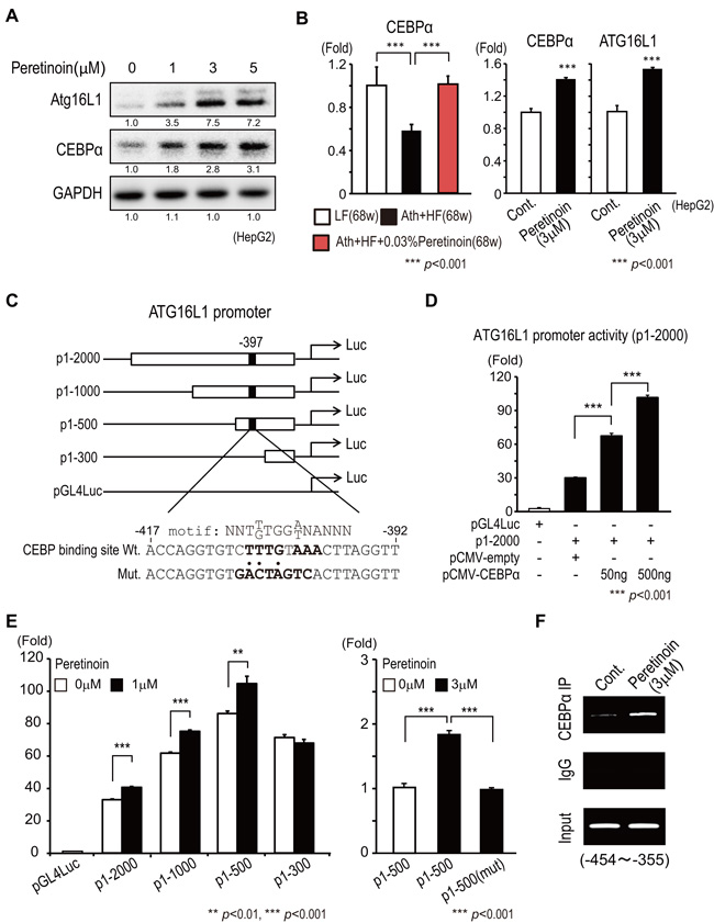 Transcriptional regulation of Atg16L1 by peretinoin through CEBPα.
