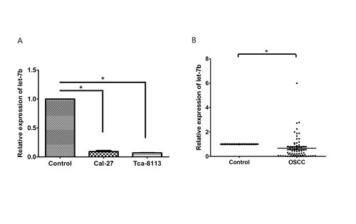 Figure 2:The expression of let-7b was reduced in OSCC cell lines and clinical sepecimens.