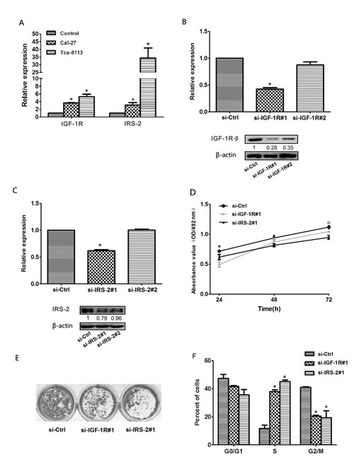 Reduced expression of IGF-1R or IRS-2 suppressed OSCC cell growth.