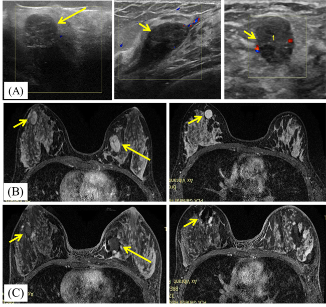 A 23-year-old woman with bilateral breast fibroadenomas.