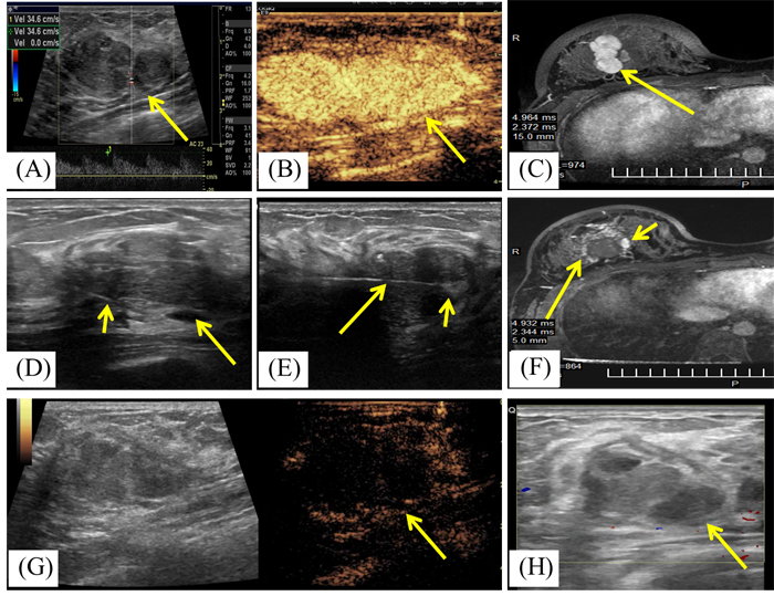 A 19-year-old woman with right breast fibroadenoma.