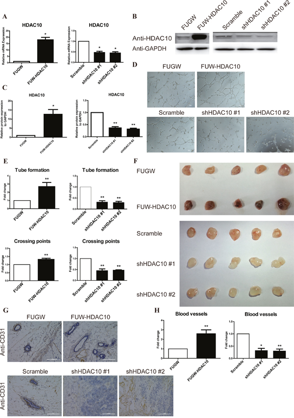 HDAC10 is required for angiogenesis in vitro and in vivo.