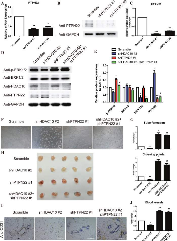 The PTPN22/ERK axis is the critical target of HDAC10 to promote angiogenesis.