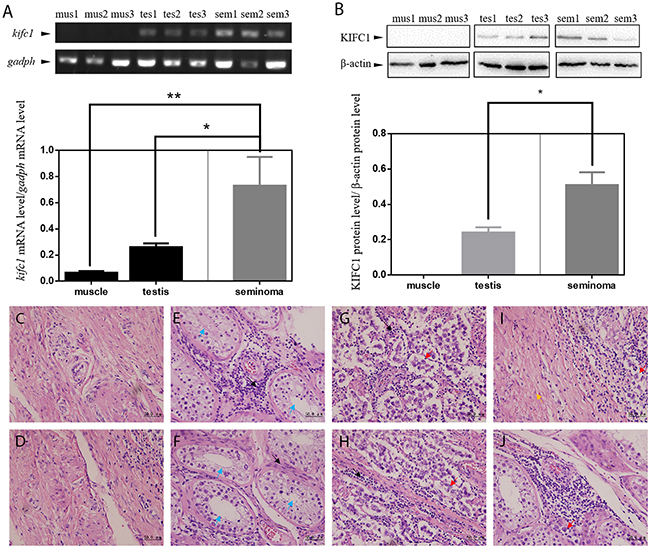 KIFC1 is enriched in human seminoma samples in both mRNA and protein level.